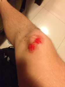 Thankfully, the gash on me knee was the only real injury I sustained during the ordeal.