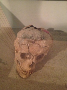 Ancient skull - the living human most likely died from the damage visible here.